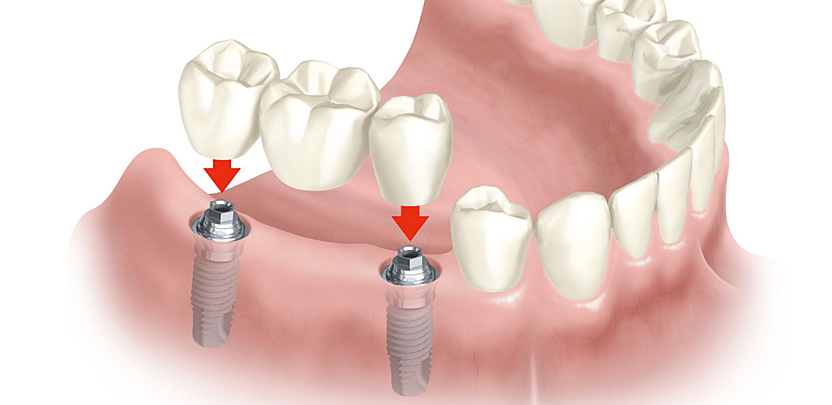 Implante dental en Clínica Dental Toledo
